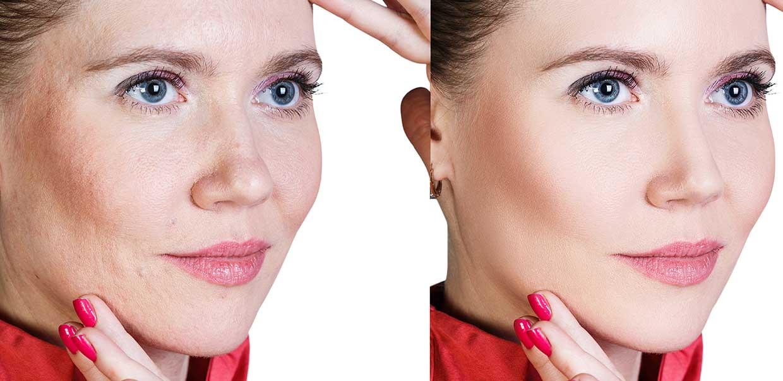 facial-skincare-health