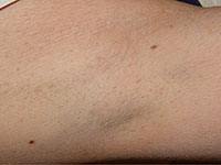hair-removal-armpit-after