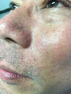 face vein after