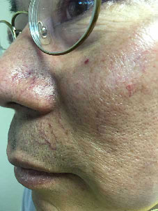 face-vein-before