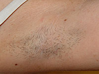 hair-removal-armpit-before
