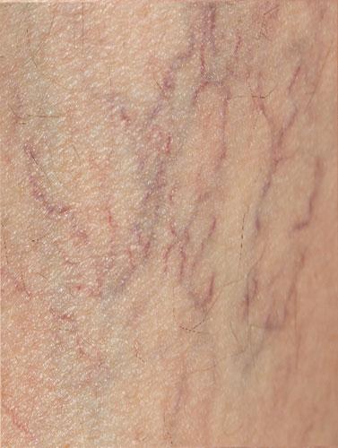 veins-before